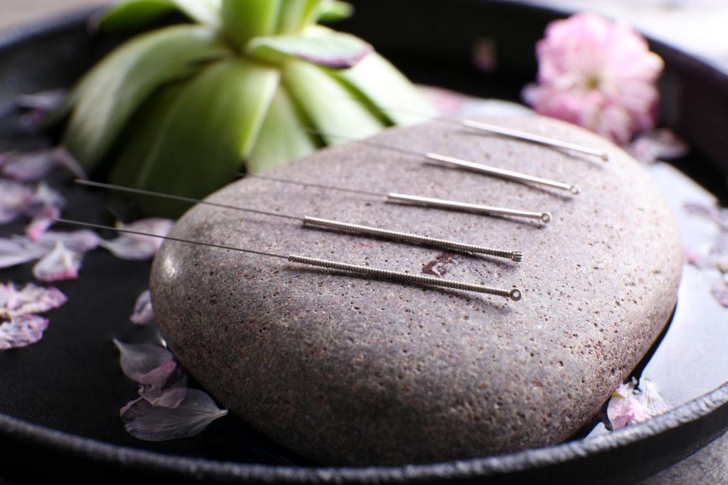 Concepts de base de la Médecine Chinoise Traditionnelle - Les Soins Zen - Toulouse
