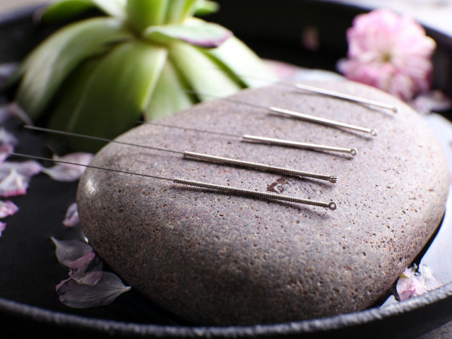 Soins traditionnels - acupuncture - les Soins Zen